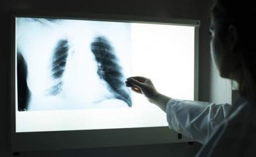 Sağlık Bakanlığı 17 bin 689 sözleşmeli sağlık personeli alınacağını açıkladı