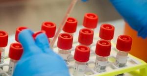 Çin'in İngiltere'ye gönderdiği tanı kitlerinde Koronavirüs tespit edildi