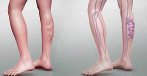 Yürürken bacağınızda ağrı mı hissediyorsunuz? Kanda Pıhtıya Dikkat!..